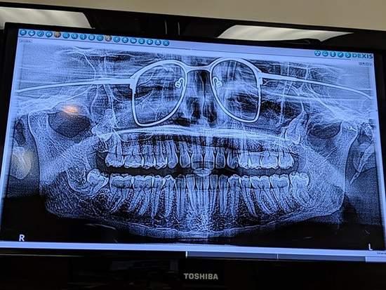 کاربرد اشعه ایکس,اخبار جالب,خبرهای جالب,خواندنی ها و دیدنی ها