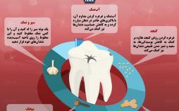 اینفوگرافیک پوسیدگی دندان