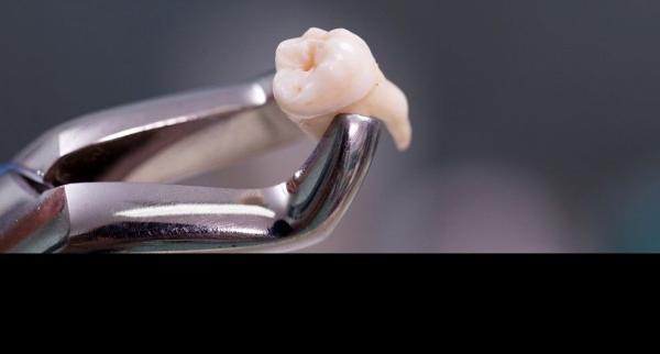 فقط یکساعت فرصت برای کاشت دوباره دندان کنده شده وجود دارد