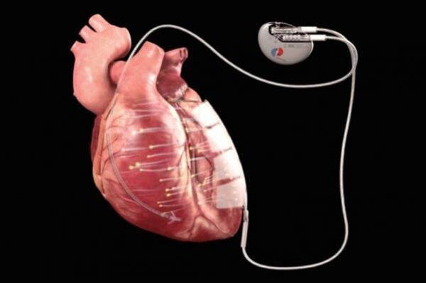 درمان بیماری های قلبی با برق,اخبار پزشکی,خبرهای پزشکی,تازه های پزشکی