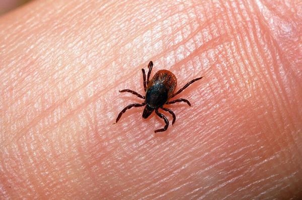 ابتلا به بیماری تب کریمه کنگو در گیلان,اخبار پزشکی,خبرهای پزشکی,بهداشت