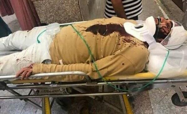 طلبه مجروح شده در کرج,اخبار حوادث,خبرهای حوادث,جرم و جنایت