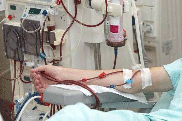 بیماران دیالیزی,اخبار پزشکی,خبرهای پزشکی,بهداشت