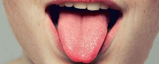 سرطان زبان,اخبار پزشکی,خبرهای پزشکی,مشاوره پزشکی