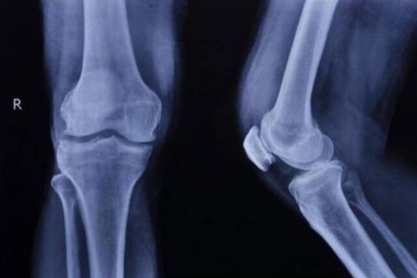 درمان ضایعات استخوانی,اخبار پزشکی,خبرهای پزشکی,تازه های پزشکی