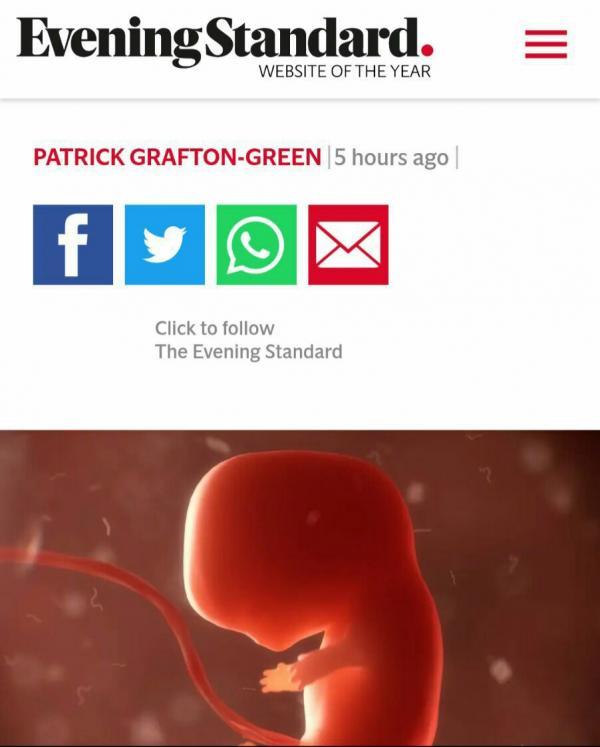 جنین ترکیبی میمون انسان,اخبار پزشکی,خبرهای پزشکی,تازه های پزشکی