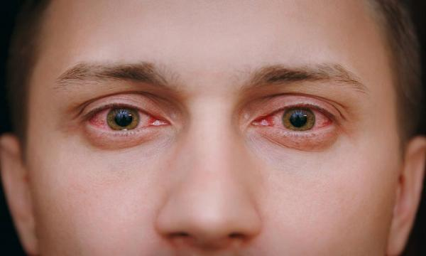 عفونت چشمی خطرناک,اخبار پزشکی,خبرهای پزشکی,مشاوره پزشکی