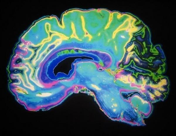 عامل مختل کننده حافظه و یادگیری,اخبار پزشکی,خبرهای پزشکی,تازه های پزشکی