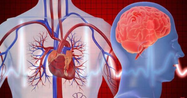 سکتههای قلبی و مغزی,اخبار پزشکی,خبرهای پزشکی,بهداشت