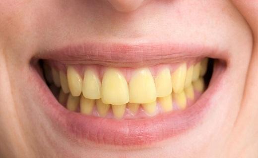 فلوئوروزیس دندانی,اخبار پزشکی,خبرهای پزشکی,مشاوره پزشکی