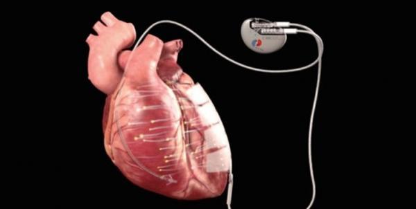 بیماری قلبی,اخبار پزشکی,خبرهای پزشکی,تازه های پزشکی