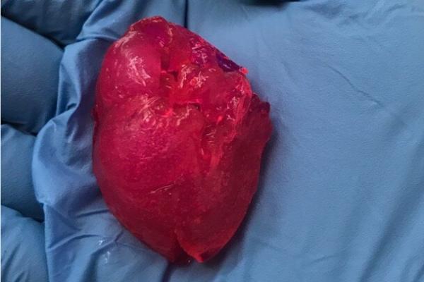 قلب مینیاتوری,اخبار پزشکی,خبرهای پزشکی,تازه های پزشکی