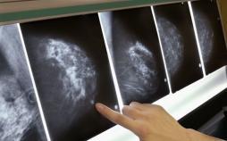 سرطان سینه,اخبار پزشکی,خبرهای پزشکی,بهداشت