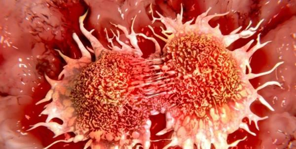 سرطان سینه,اخبار پزشکی,خبرهای پزشکی,تازه های پزشکی