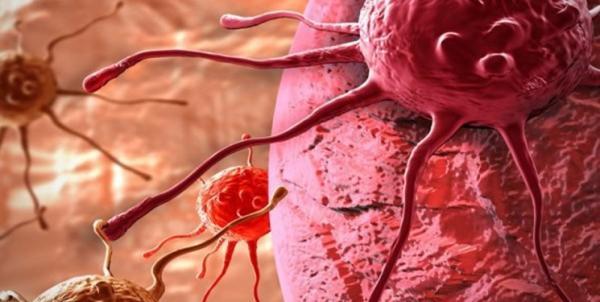 راهکار ایمن ساری بدن در مقابل سرطان,اخبار پزشکی,خبرهای پزشکی,تازه های پزشکی