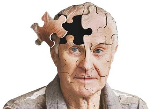بیماری آلزایمر,اخبار پزشکی,خبرهای پزشکی,بهداشت