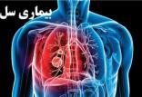 بیماری سل,اخبار پزشکی,خبرهای پزشکی,بهداشت