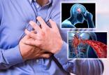 عوامل قابل کنترل سکته,اخبار پزشکی,خبرهای پزشکی,مشاوره پزشکی