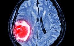 تشخیص سفتی تومورها,اخبار پزشکی,خبرهای پزشکی,تازه های پزشکی