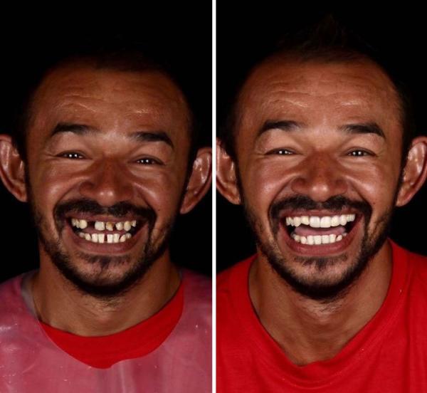 خدمات دندانپزشکی روسی به فقیرترین آدمها,اخبار جالب,خبرهای جالب,خواندنی ها و دیدنی ها