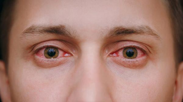 مشکلات چشمی,اخبار پزشکی,خبرهای پزشکی,مشاوره پزشکی