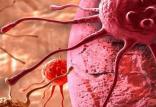 سرطان کبد,اخبار پزشکی,خبرهای پزشکی,تازه های پزشکی
