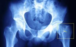 شکستگی لگن در زنان مسن,اخبار پزشکی,خبرهای پزشکی,تازه های پزشکی