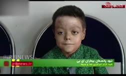 فیلم/ مرگ ۱۵ بیمار ایرانی به علت نبودن پانسمان!