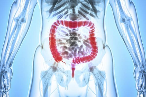 سرطان کولون,اخبار پزشکی,خبرهای پزشکی,تازه های پزشکی
