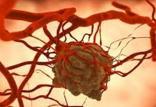 جدیدترین راه برای درمان سرطان,اخبار پزشکی,خبرهای پزشکی,تازه های پزشکی
