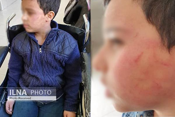 تنبیه بدنی دانشآموز ۱۰ ساله توسط معلم ورزش,نهاد های آموزشی,اخبار آموزش و پرورش,خبرهای آموزش و پرورش