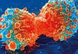 درمان سرطان با نانوذرات اکسیدمس,اخبار پزشکی,خبرهای پزشکی,تازه های پزشکی