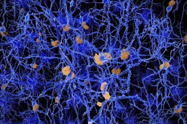 بیماری آلزایمر,اخبار پزشکی,خبرهای پزشکی,تازه های پزشکی