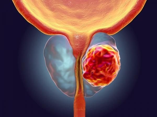 تشخیص سرطان پروستات با استفاده از قندهای پیچیده,اخبار پزشکی,خبرهای پزشکی,تازه های پزشکی
