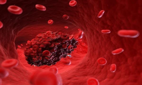 ابزاری برای شناسایی لختههای خون,اخبار پزشکی,خبرهای پزشکی,تازه های پزشکی