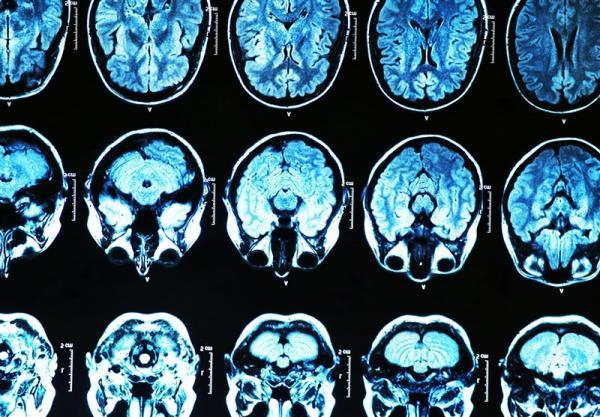 خطر ژن معیوب مرتبط با زوال عقل برای ابتلا به کرونا,اخبار پزشکی,خبرهای پزشکی,تازه های پزشکی