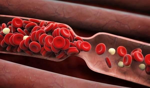 لخته شدن خون در ریه عامل جدید مرگ ناشی از کرونا,اخبار پزشکی,خبرهای پزشکی,تازه های پزشکی