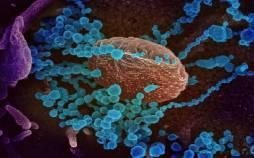 ویروس کرونا در سلول,اخبار پزشکی,خبرهای پزشکی,تازه های پزشکی