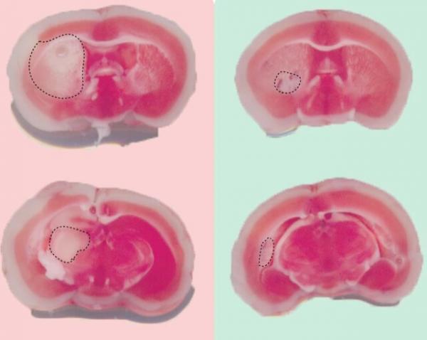 داروی جدید برای کاهش آسیبهای ناشی از سکته مغزی,اخبار پزشکی,خبرهای پزشکی,تازه های پزشکی