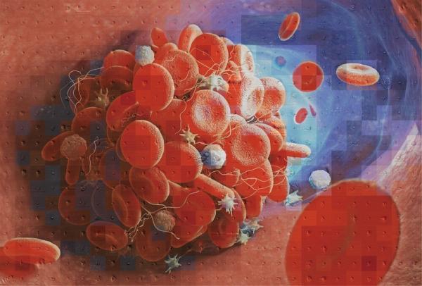 تاثیر کرونا بر افزایش افزایش لخته خون در شریانهای پا,اخبار پزشکی,خبرهای پزشکی,تازه های پزشکی