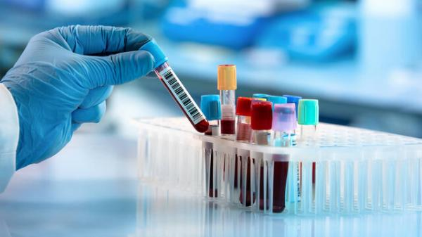 آزمایش خون مبتنی بر هوش مصنوعی برای تشخیص سرطان پروستات,اخبار پزشکی,خبرهای پزشکی,تازه های پزشکی
