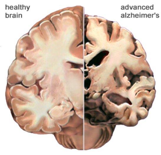 عوامل موثر در کاهش خطر آلزایمر,اخبار پزشکی,خبرهای پزشکی,تازه های پزشکی