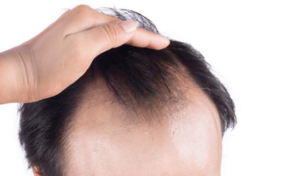 پیشگیری از ریزش مو با سلول بنیادی,اخبار پزشکی,خبرهای پزشکی,تازه های پزشکی