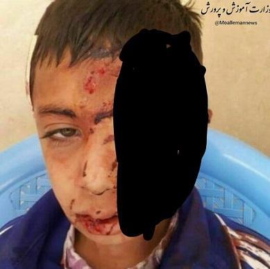 سقوط دانش آموز از کوه,نهاد های آموزشی,اخبار آموزش و پرورش,خبرهای آموزش و پرورش