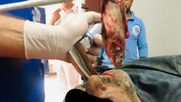 انتقام یک ماهی از ماهیگیر مصری,اخبار جالب,خبرهای جالب,خواندنی ها و دیدنی ها