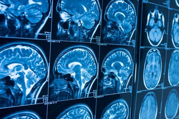 آلزایمر,هوش مصنوعی