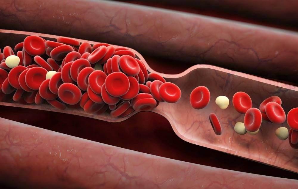 علت سرطان خون,انواع سرطان خون,گلبول قرمز