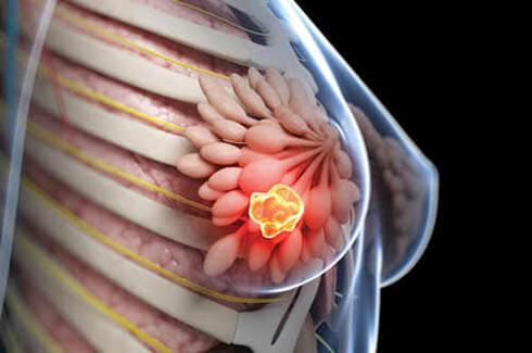 درمان سرطان سینه,تصاویر سرطان سینه,درمان سرطان سینه