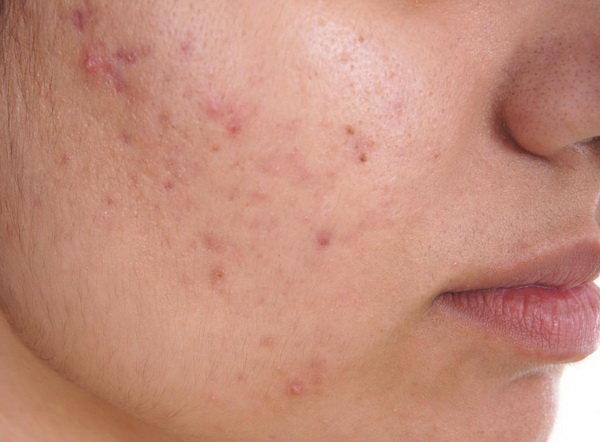 درمان خانگی آکنه,عوامل ایجاد آکنه,جوش صورت