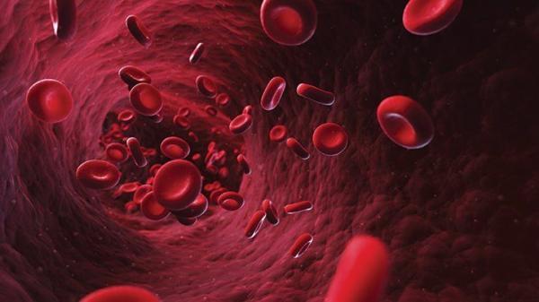 درمان کم خونی شدید,کم خونی,کم خونی در کودکان